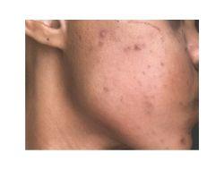 Lerato's Mask-Related Acne Breakout for The LOVELEELERA Blog